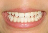 食べもの・食べ方で歯が溶ける酸蝕歯の原因、経緯は?予防法は?