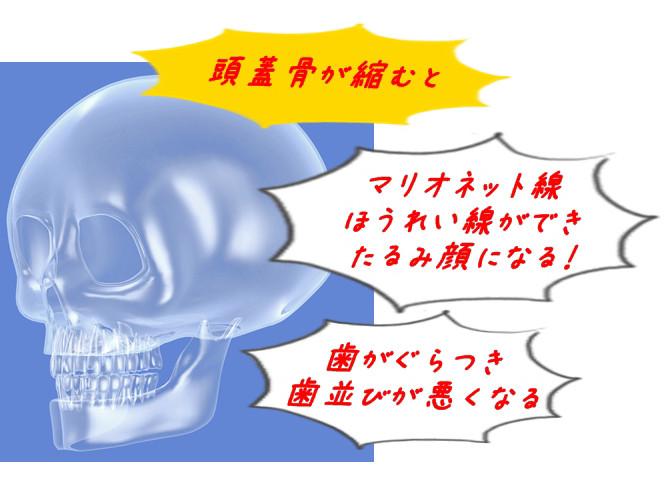頭蓋骨の骨粗鬆症のイメージイラスト