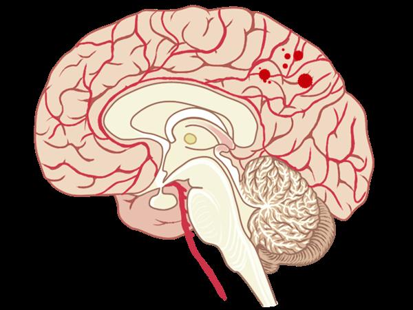 脳出血のイメージイラスト