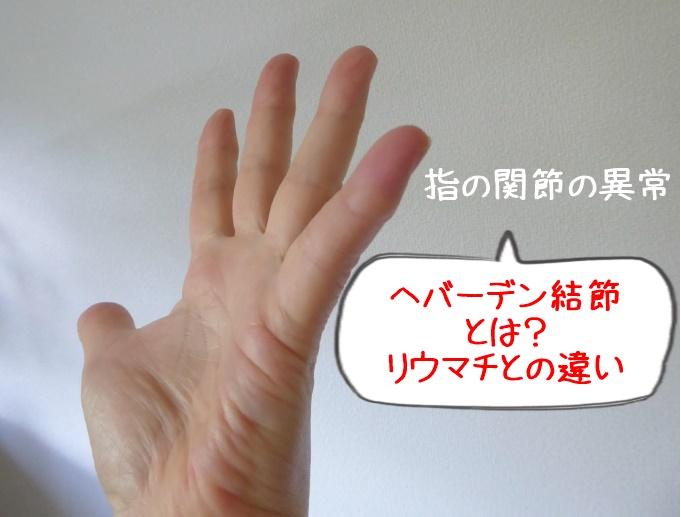 手の更年期症状「ヘバーデン結節」 特徴と対策「関節リウマチ」との違い