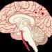 3人に1人が隠れ脳出血、その原因が身近にいるアレとは!対策は?